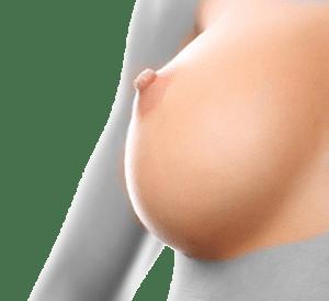 ÉPILATION LASER DEFENITIVE FEMME - SEINS ET MAMELLONS