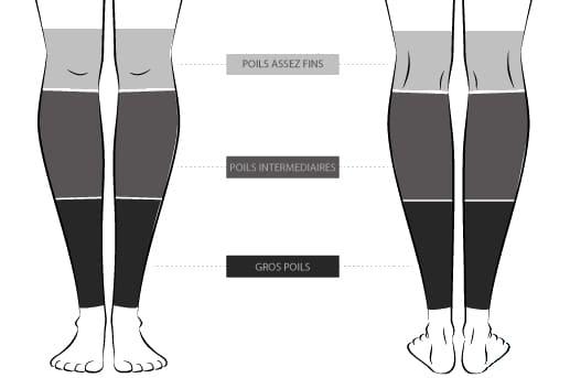 epilation laser jambe prix