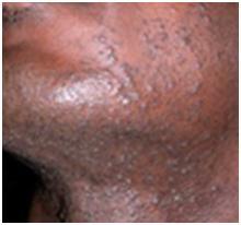 poils incarnés visage 1
