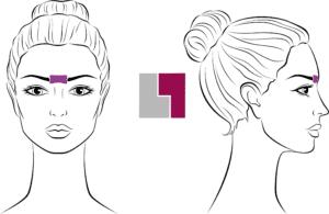 epilation laser entre les sourcils femme